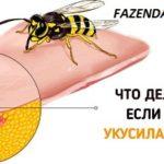 Если ужалила пчела, что делать в домашних условиях и как снять отек